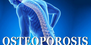 Try the one minute risk osteoporosis risk test
